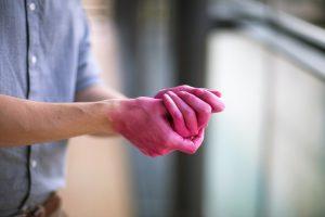 Mit pinken Händen gegen unzureichende Desinfektion